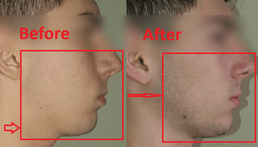Mewing before and after - 1 month progress