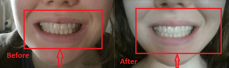 Mewing with neck exercises - Before and after